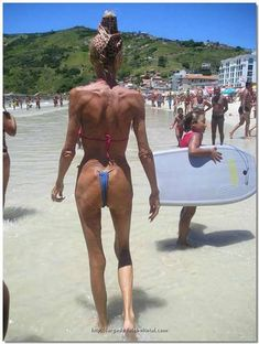 Pictures That Are Just Wrong | Awful Plastic Surgery US - bad plastic surgery and celebrity plastic ...
