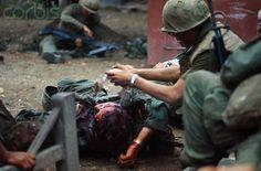 https://flic.kr/p/6EXsWP   U1583327   04 Feb 1968, Hue, South Vietnam --- View of Wounded US Marine --- Image by © Bettmann/CORBIS
