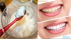 Better Than The Dentist: 4 Steps To Whiten Yellow Teeth And Remove Plaque And Tartar Buildup - Fine Cooking Beauty Secrets, Beauty Hacks, Teeth Whitening Methods, Mouthwash, Natural Cures, Body Care, Healthy Life, Healthy Teeth, Health Tips