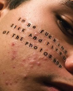 acne is not going away 1