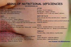 Signs of nutritional defecincy