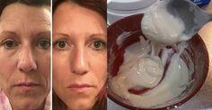 Botox caseiro para o rosto. Elimina rugas e rejuvenesce, resultados visíveis a partir da primeira aplicação. Como fazer a receita do botox facial.