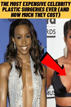 #Expensive #Celebrity #Plastic #Surgeries #Ever Extreme Plastic Surgery, Celebrity Plastic Surgery, Famous Celebrities, Celebs, Celebrities Fashion, Fashion Fail, Fashion Outfits, Fashion Tips, Indoor Family Photography