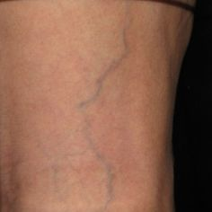 Laser vein therapy - BEFORE