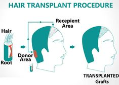 #Beauty and #Hair transplant.... How it works?.... For more details visit on http://www.hairtransplantinnagpurindia.com/