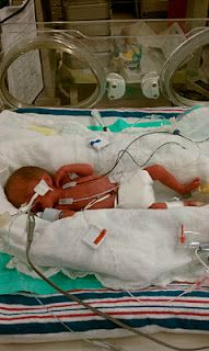 I wrote the post for the Preemie Resource Blog - a great resource for parents, family and friends in all phases of the preemie/NICU journey