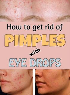3 Tips To Get Rid Of Pimples Overnight