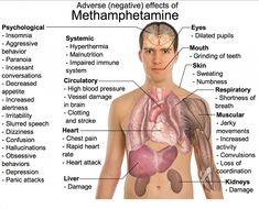 Long Term Effects of Meth - A Devestating Drug | Sober Nation