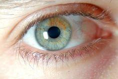 Sectoral heterochromia, very pale green + honey.