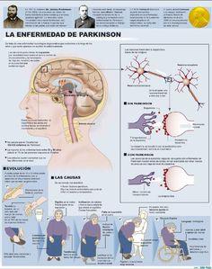EL Parkinson, es un trastorno neurodegenerativo crónico que conduce con el tiempo a una incapacidad progresiva, producido a consecuencia de la destrucción, por causas que todavía se desconocen, de las neuronas pigmentadas de la sustancia negra. Frecuentemente clasificada como un trastorno del movimiento, la enfermedad de Parkinson también desencadena alteraciones en la función cognitiva, en la expresión de las emociones y en la función autónoma.