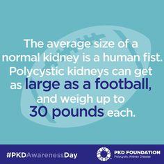 Share this PKD Awareness Day fact