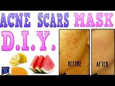 How To GET RID OF ACNE SCARS FAST DIY Beauty Dark Spots Pimples Acne Treatment Himani Wright | trimhealth.net