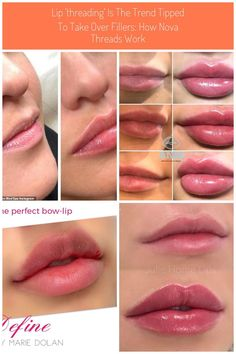 Lip 'threading' is the trend tipped to take over fillers: How nova threads work … Dermal Fillers Lips, Botox Fillers, Lip Fillers, Facial Fillers, Lip Injections, Lip Plumper, Botox Lips, Hair Health And Beauty, Lip Shapes