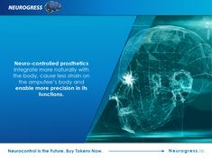 Neurogress.io. Neurocontrol is advancing rapidly, with results like prosthetic arms that can be controlled with just a thought, but not without a few problems. Find out how this fascinating technology works. Invest in the interactive mind-controlled devices of the future by buying tokens now. Visit Neurogress.io.