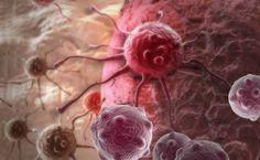 #New Molecular Marker Can Predict Breast Cancer Risk - NDTV: NDTV New Molecular Marker Can Predict Breast Cancer Risk NDTV The team…