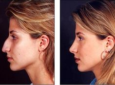 Rhinoplasty - Before & After