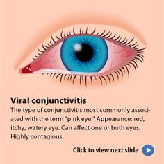 Learn about the 3 types of conjunctivitis (pink eye) - AllAboutVision.com