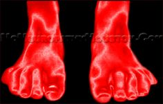 Real Health News True Health Blog: Peripheral Neuropathy Kills Your Nerves!     What confuses most doctors about Peripheral Neuropathy is that each patient will describe their symptoms in their own individual language of pain.  This makes it next to impossible for these doctors to realize and appreciate that these different patient subjective complaints are really all about the same problem, that being Peripheral Neuropathy.