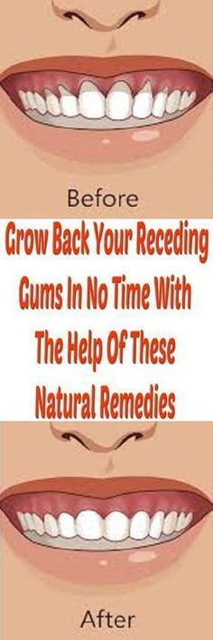>>>Cheap Sale OFF! >>>Visit>> How to fix the health problem of receding gums with homemade natural remedies only with few steps.Read the article below. Oral Health, Dental Health, Dental Care, Health Tips, Teeth Health, Grow Back Receding Gums, Claves Wifi, Teeth Care, Natural Home Remedies