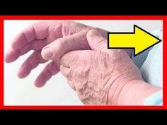 acido urico alto cansancio el acido urico causa fiebre acido urico bajo en diabeticos