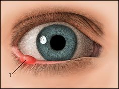 Natural Home Remedies - Old Folk Cures And Recipes: Barley (Stye) In The Eye. Treatment With Home Remedies.
