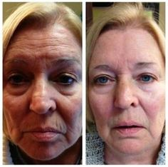Real Results Real People - need I say more? www.farmer.theneriumlook.com
