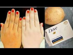 Natural Skin Whitening Treatments – The Best Solution For Dark Spots Skin Whitening Soap, Natural Skin Whitening, Natural Skin Care, Potato For Skin, Potato Face, Dove Soap, Beauty Tips For Glowing Skin, Lighten Skin, Hair