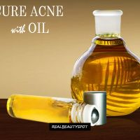 Cure Acne naturally with Oils