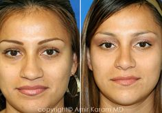 Before and After Rhinoplasty Photo