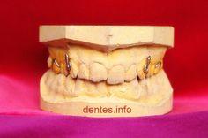 Modelos de prótese dentária