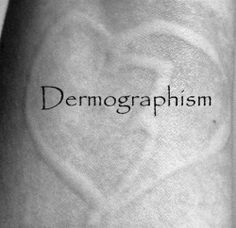 Dermographism - The Skin Writing Allergy- Lots of useful links, information and pictures.