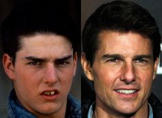 Celeb Teeth: Before & after  Tom Cruise-whoa