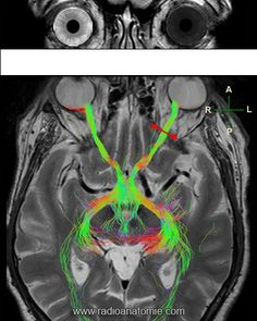 Link between neurological visual field defects and injury localization on an optic pathway tractography