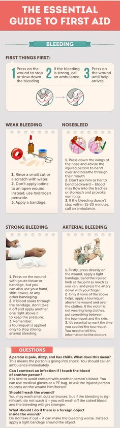 First Aid Basics for Bleeding - 43 Usefull Hiking Tips and Tricks seasonal symptoms health health natural remedies aid Survival Prepping, Emergency Preparedness, Survival Skills, Survival Stuff, Wilderness Survival, First Aid Tips, Basic First Aid, Emergency First Aid, Emergency Preparation