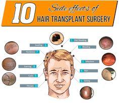 Hair Transplant Side Effects Hair Transplants Before After - Custom vinyl decal application fluidhow to make decal application fluidhair loss surgery