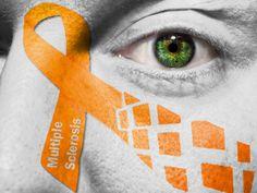 ¿Cómo es la vida para un paciente con esclerosis múltiple? Lee este relato.