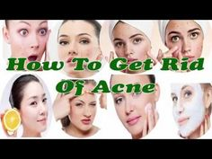 How To Get Rid Of Acne -  Best Home Remedies For Acne Treatment -  CLICK HERE for the Acne No More program #acne #acnecure #acnetips #acnecare Click Here:  Acne — How To Get Rid Of Acne – Best Home Remedies For Acne Treatment — Acne that is generally stated as acne is an exceptionally general skin sickness that commonly occurs on the face,... - #Acne