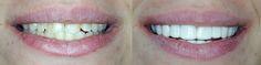 A before and after of TruSmile Veneers! They are affordable and easy to recieve… Veneers Teeth, Dental Veneers, Dental Hygiene, Dental Care, Dental Resin, Misaligned Teeth, Gap Teeth, Smile Teeth, Soft Foods