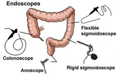 Hiltons method for abscess drainage surgery pinterest extent of lower gi scopes note rigid sigmoidoscope 25 cm flexible sigmoidoscope 60 cm average insertion length was 21 cm for the rigid and sciox Images