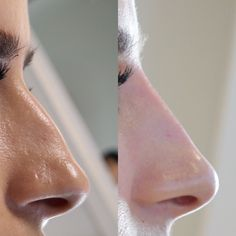 non surgical Nose-job at Avebelle Clinic Nose Fillers, Beauty Clinic, Cosmetology, Beauty Makeup, Cosmetics, Gifts, Animals, Rhinoplasty, Beauty Tricks