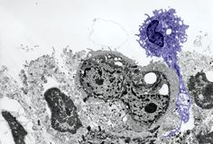 "Dendritic cells are the ""shakers and movers"" of the immune system. They detect pathogens and then get the immune response rolling by activating T cells. Dendritic cells in the skin and other epithelial surfaces are called Langerhans cells (purple). Like all dendritic cells, Langerhans cells use receptors on their cell surface (e.g., Toll receptors) to identify and uptake pathogens by phagocytosis or endocytosis."