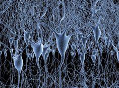 Nachbildung eines neuronalen Netzwerks im Gehirn: Nervenzellen sind mit Nervenfasern verbunden, Erregung pflanzt sich von Zelle zu Zelle fort, die Gewichtung der Verbindungen verändert sich im Lauf der Zeit. Nach einem ähnlichen Modell lernen auch künstliche neuronale Netze.