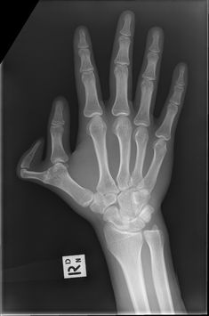 Pre-axial polydactyly refers to polydactyly where the additional digit is towards the first digit of the hand (radial side) or foot (medially).   https://radiopaedia.org/articles/pre-axial-polydactyly
