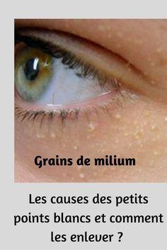 Grains de milium : quelles sont les causes des petits points blancs sous les yeux et comment les enlever ? Budget Clean Eating, Health Dinner, Care Quotes, Cosmetology, Skin Care Tips, Body Care, Budgeting, Weight Loss, Personal Care