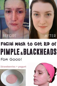 Facial masks to remove pimples and blackheads. the 10 most life changing beauty hacks Skin Treatments, Pimples On Forehead, How To Get Rid Of Pimples, Black Skin Care, Acne Skin, Blackhead Remover, Facial Masks, Skin Care Tips, Buttons