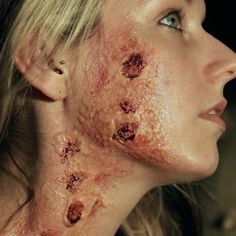 Burn make-up/ special effects makeup