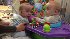 Conjoined twins head to rehab