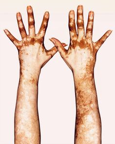 Image may contain: one or more people Hand Reference, Photo Reference, Albinism, Photo Projects, Photography Projects, Nude Color, Human Body, Female Bodies, Character Inspiration