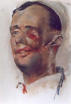 Henry Tonks watercolour documenting facial injuries of the First World War. Expressionist Portraits, Flanders Field, War Image, A Level Art, Political Events, Pastel Drawing, Portrait Ideas, World War I, Watercolours