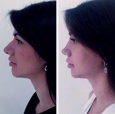 """Результат операции """"Ринопластика"""", проведенной доктором Кузины Д.А.  (фото спустя 14 дней после операции)"""